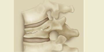 Cortesía de Cirugía de columna sin sangre